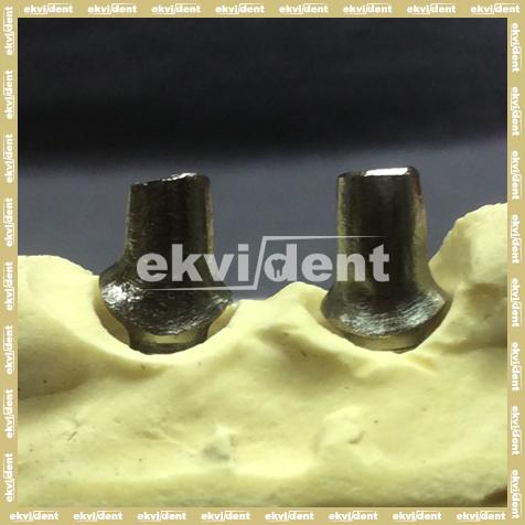 Biztonságos  megoldás implantátumokkal
