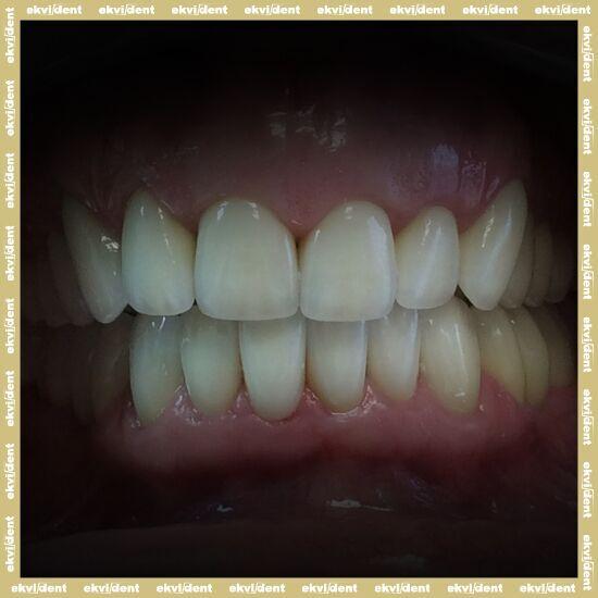 Fogpótlás, ami hosszútávon segíti meglévő fogai biztonságát