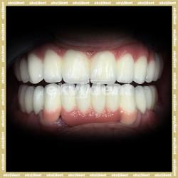 Az implantátum valódi értéke a fogászatban