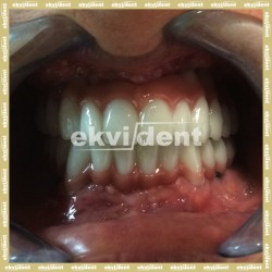 Implantátumokról