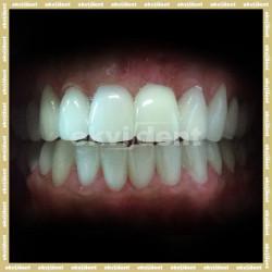 A saját fogak valódi értéke